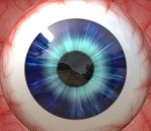 Correction de l'hypermétropie forte par implant intraoculaire