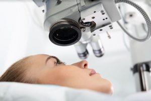 La correction de l'astigmatisme au Lasik